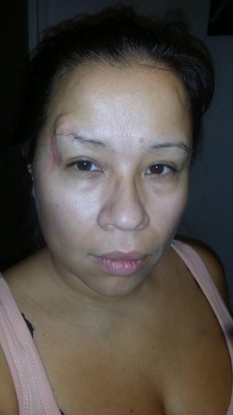 ersättning för ärr i ansiktet