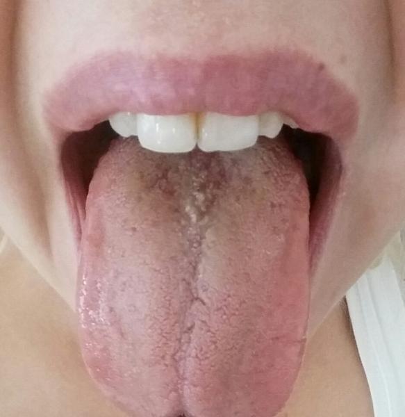 Svider på tungan