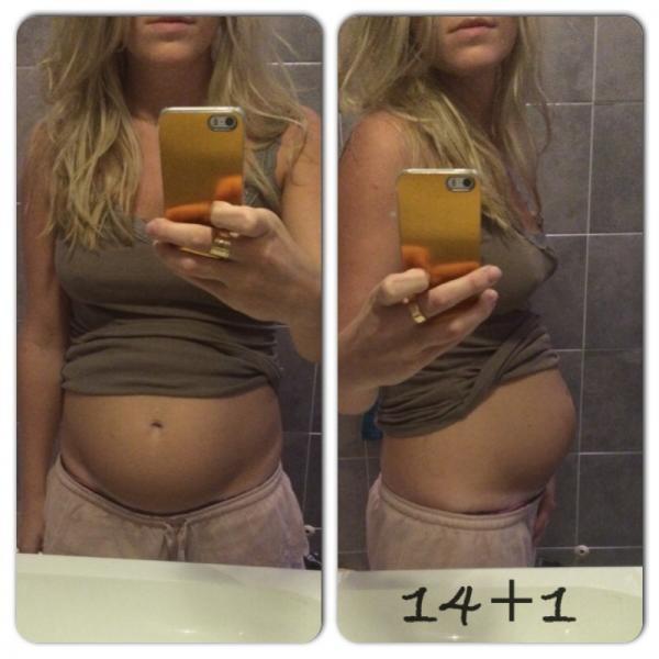 Framåtlutad livmoder